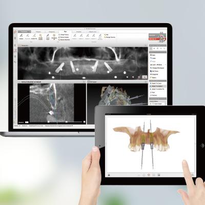 数字化软件设计提前知晓种植效果