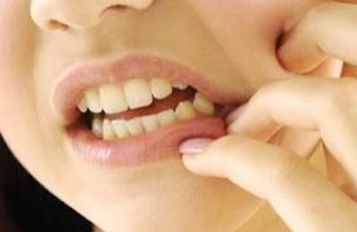 突发性、自发性的剧烈牙疼