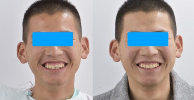 惟德口腔让年轻小伙重获美观完整新牙