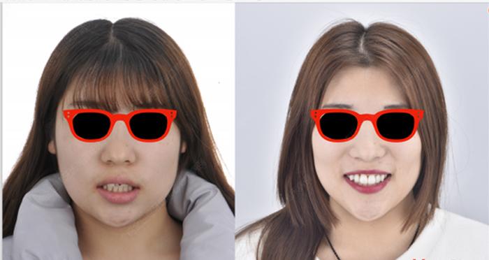 惟德口腔牙齿矫正让少女的牙齿走上逆袭之路