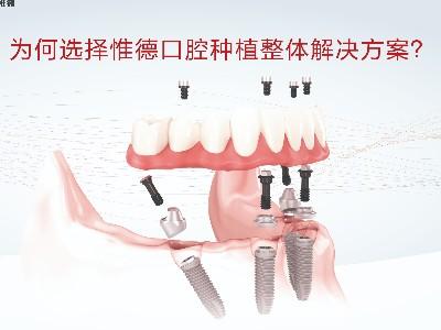 承德老人半口牙齿缺失怎么修复