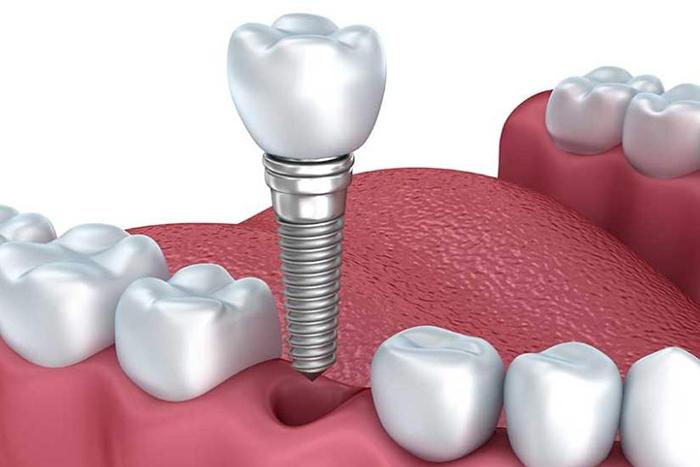 惟德口腔浅析口腔种植需要满足哪些条件