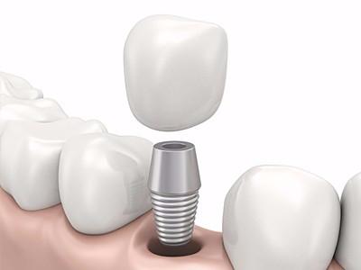 在承德哪家口腔医院口腔种植齿好一点,惟德口腔医院值得您的选择