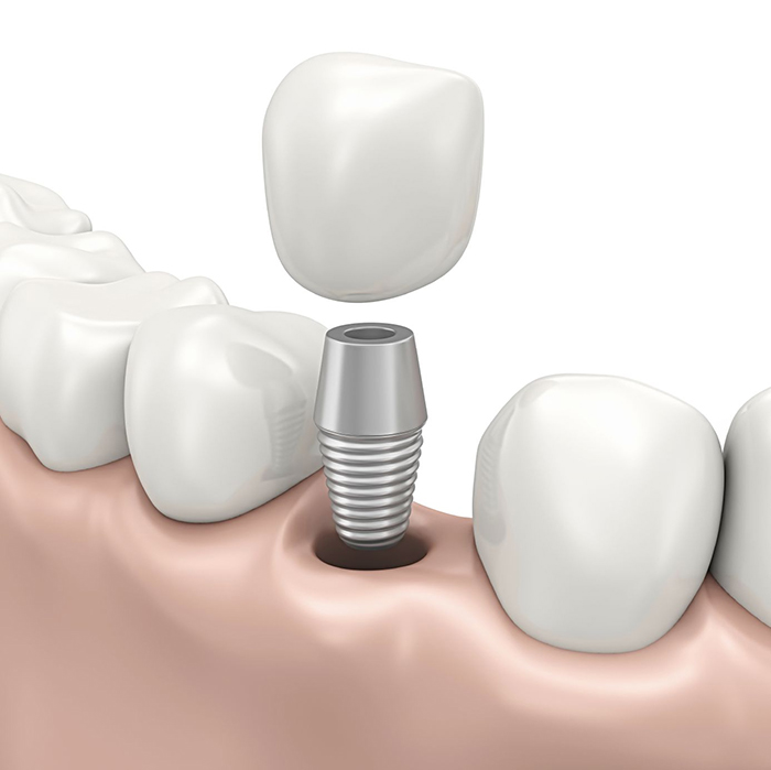 在承德哪家口腔医院口腔种植牙齿好一点,惟德口腔医院值得您的选择