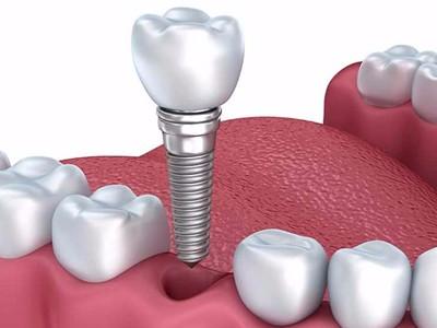 惟德口腔浅析种植牙需要满足哪些条件