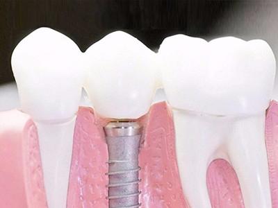 在承德种植牙齿需要多少钱?惟德口腔一一为您道来