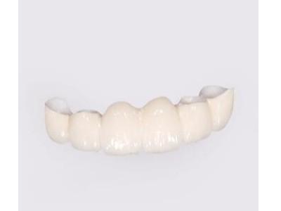 请问承德做一颗全瓷牙价位是多少