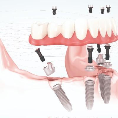 承德无牙颌种植案例